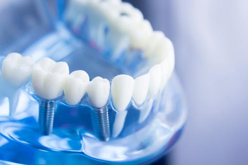 Dental Implants - AGN Dental
