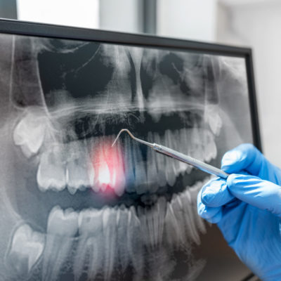 Doctor looking at human teeth x-ray on computer monitor. Modern dental clinic.